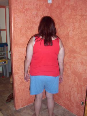 ... intra-abdominal visceral fat, as a woman with type 2 diabetes