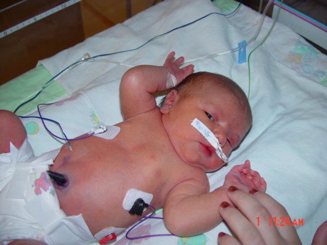 Gestational Diabetes Labor Stories 3